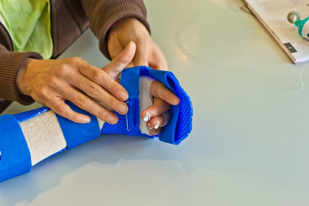 Полезное: hand physiotherapy to recover a broken finger